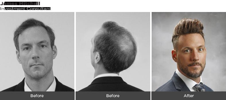 James - Hair Fall Treatment Dubai