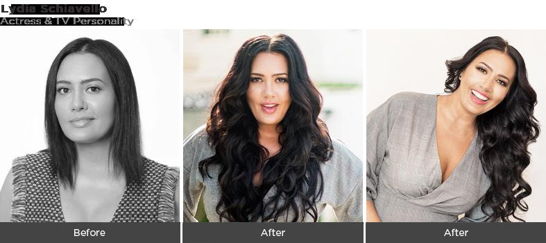 Lydia - Hair Fall Treatment Dubai
