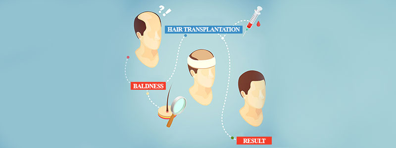 for a Successful Hair Transplant
