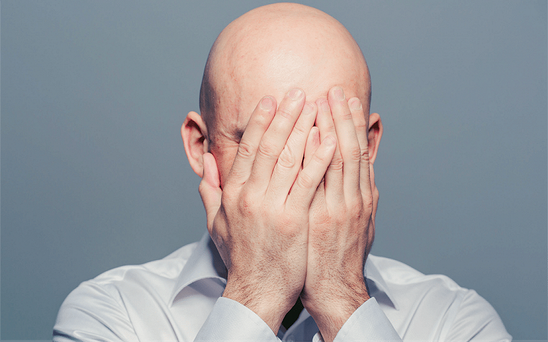 The Psychological Impact of Balding