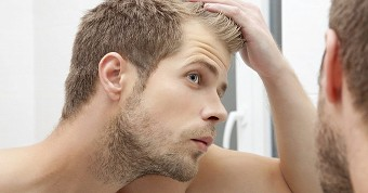 Advanced hair studio hairline thinning