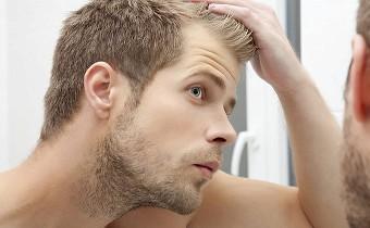 Advanced hair studio hairline thinning