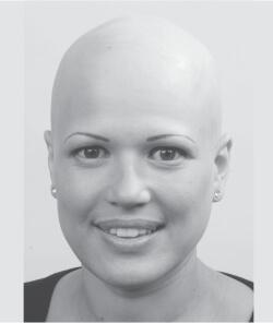 Anthea before hair treatment
