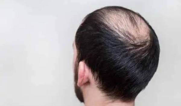 Let's take a look at different races and the varying likelihoods of baldness