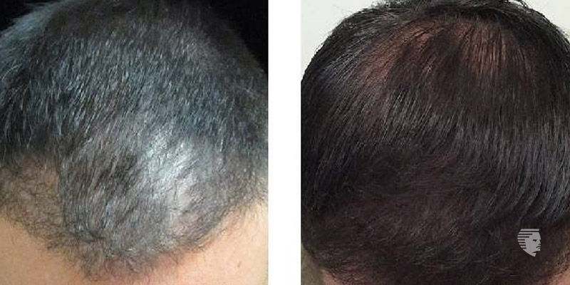 Are you Planning for a Hair Treatment Failure Time to Re-think