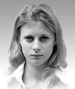 Before hair regrowth Sarah Wilhelm
