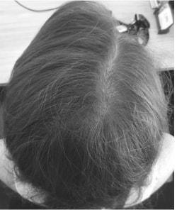 Before hair regrowth treatments Amanda