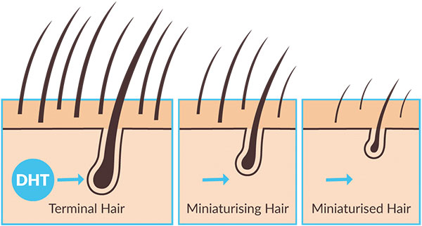 SOME BIZARRE REASONS THAT ARE MAKING YOUR HAIR SHED