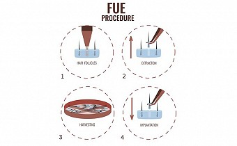 What is FUE hair transplant? PROS and CONS.