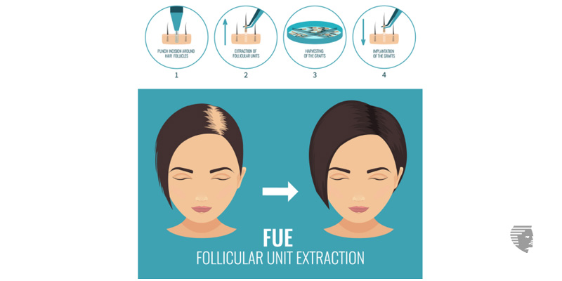 FUE (Follicular Unit Extraction) transplant in women