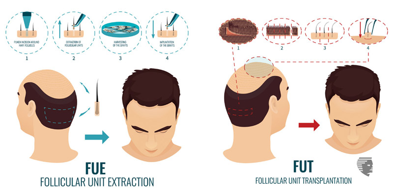 EVERYTHING YOU WANTED TO KNOW ABOUT HAIR TRANSPLANT