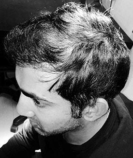 Before hair loss treatments Gautam Gambhir