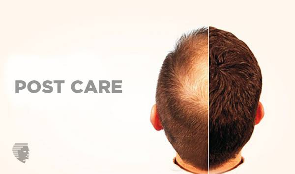Ultimate Guide for Hair Transplant Cost Procedure  Pre & Post Care  UAE