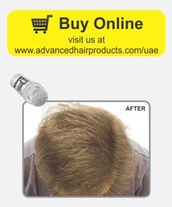 Hair loss products- Hair thickening fibers after