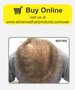 Hair loss products- Hair thickening fibers before
