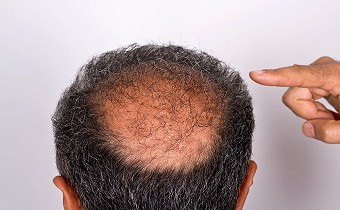 Hair restoration determinants things you need to know before you choose to act