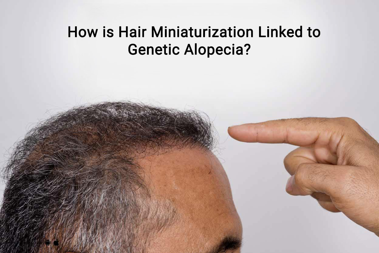 Is Hair Miniaturization Linked to Genetic Alopecia