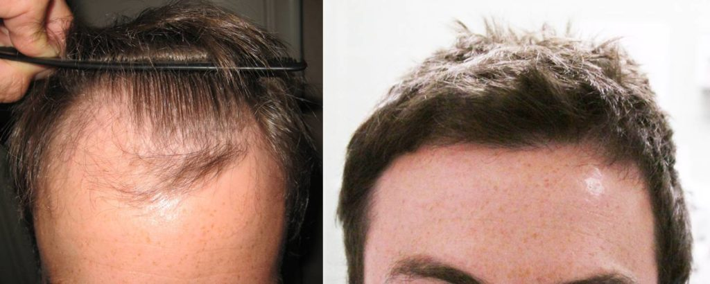 7 TIPS TO KEEP IN MIND WHILE SEARCHING FOR A HAIR REGROWTH CLINIC