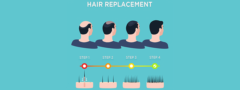 Hair Replacement Surgery