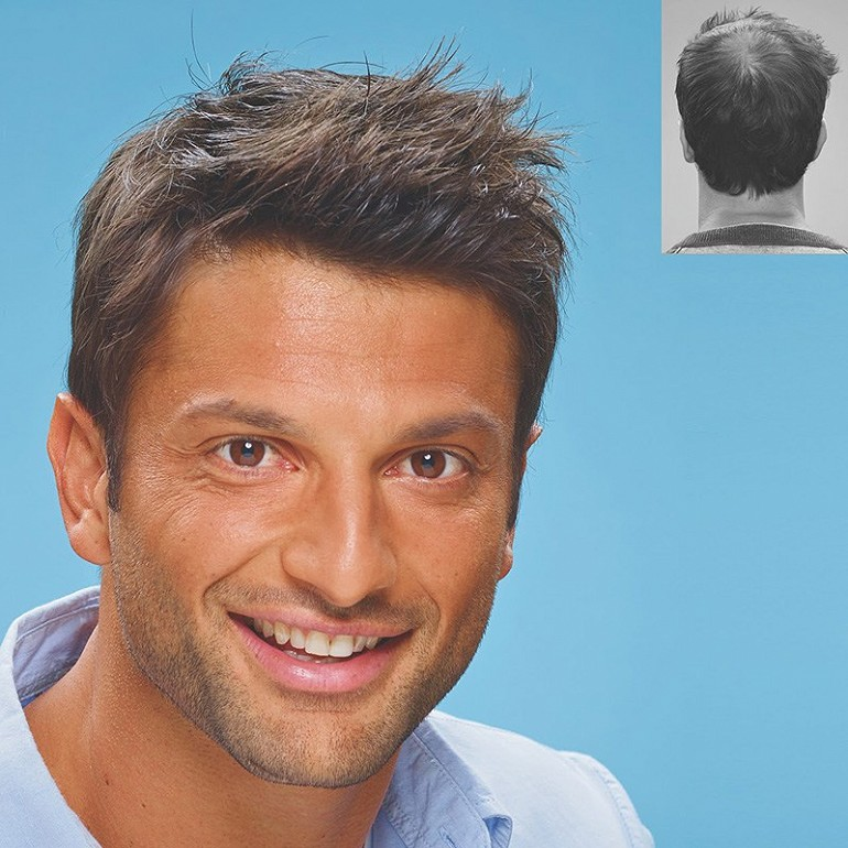 Hair transplant cost in dubai 1