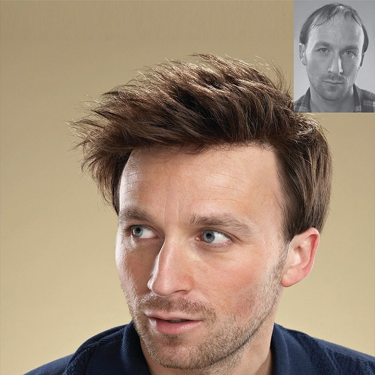 Hair transplant cost in dubai 2