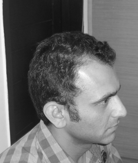 Before hair loss treatments Jatin Sapru