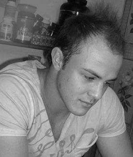 Before hair loss treatments Justen Pelser
