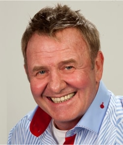 Leon Schuster after hair replacement treatment