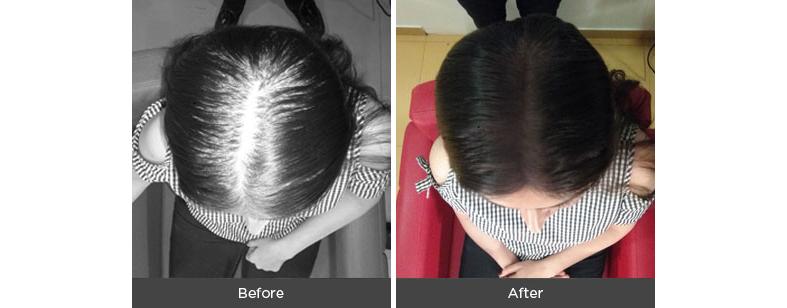 Magic hair thickening fibers