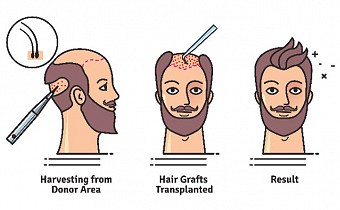 7 most common myths about Hair Transplants