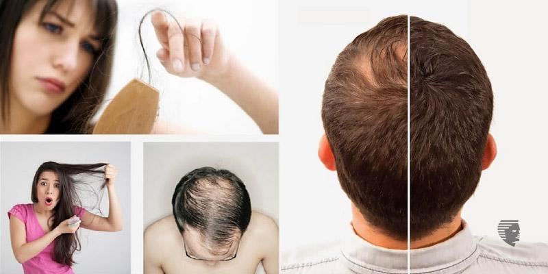 TOP 8 REASONS FOR HAIR FALL