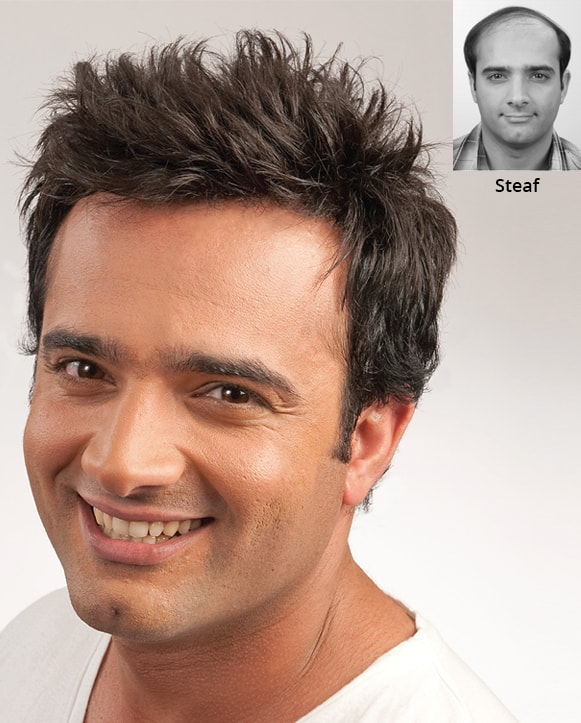 Hair transplant cosmetic therapy Guka