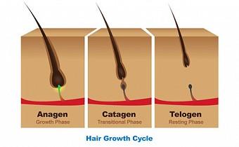 Telogen Effluvium - a common form of hair loss