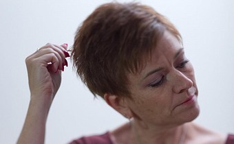 Is Trichotillomania a reason of your hair loss?